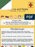 Cleft Lip and Palate Suma Jose
