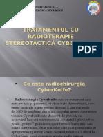 Tratamentul Cu Radioterapie Stereotactică Cyberknife