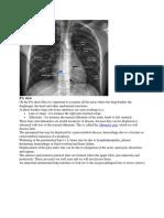 chest radiology.docx