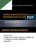 Signos Radiologicos Pulmonares Indira - Copia(1)