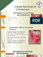 Cruz Liseth Estomatitis Aftsa Recurrente