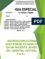 Glioblastoma CASO CLINICO