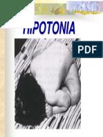 Hipotonía.pdf