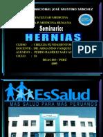 20 SEMINARIO HERNIAS