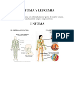 Linfoma y Leucemia Resumen