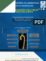 Valor Diagnóstico de la Tomogarafía en La Disección Aórtica