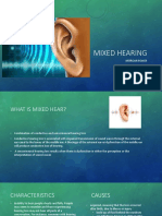 mixed hearing