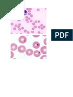 hemoparasitas