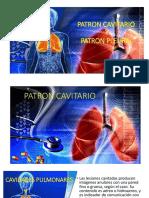 Practico Patron Cavitario y Pulmonar