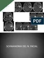 18166685 Neurinoma VII Extension a Fosa Media