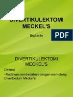 Divertikulektomi Meckel's 1