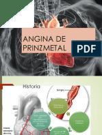 Angina de Prinzmetal