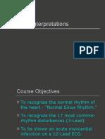 ECG Interpretations Good