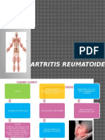 artritis reumatoide AHERO
