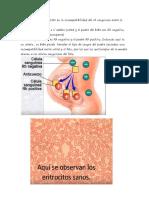 eritroblastocis fetal
