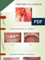 1 - Lesiones Dentales No Cariosas1