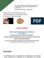Epidemiologia de Alveolitis PPT
