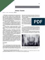Osteomalacia - Uncommon Causes