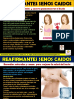 REAFIRMAR SENOS CAIDOS
