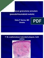 Subcutaneous Granuloma Annulare  (Pseudorheumatoid nodule). ,F 38, Ankles.