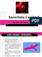 Aneurisma Cerebral Real