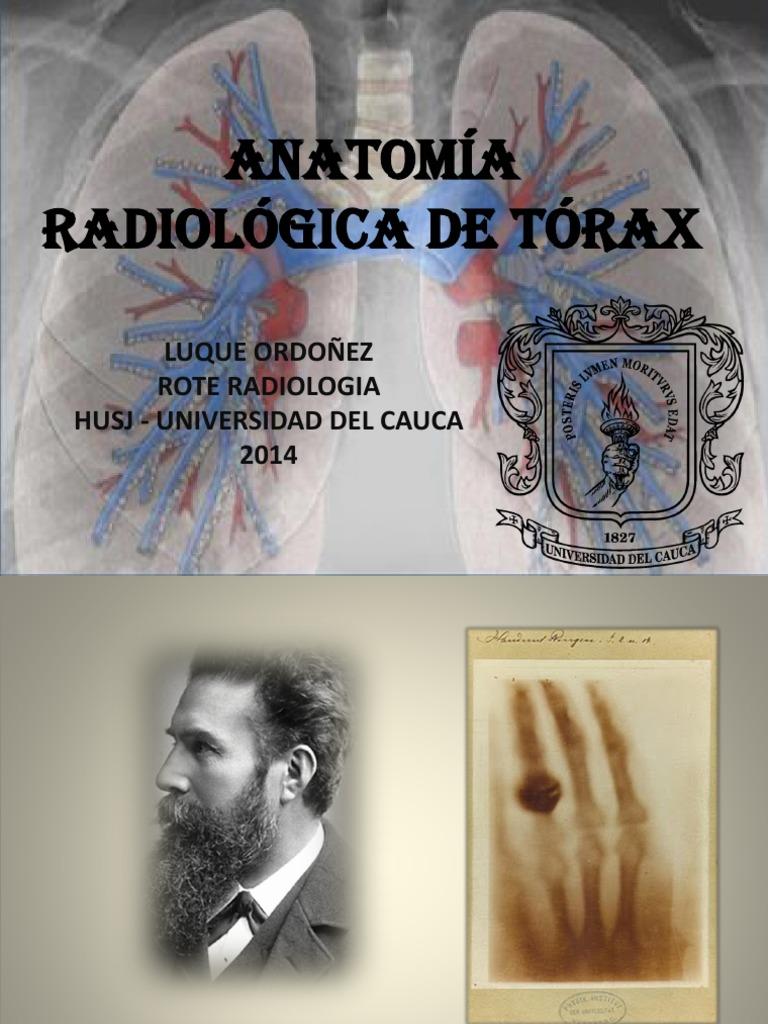 Anatomía Radiológica de Tórax - LUQUEd