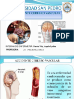 accidentecerebrovascular-140717192327-phpapp02