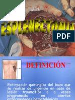 S02 Esplenectomia