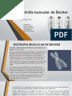 Distrofia Muscular de Becker