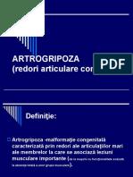 Artrogripoza (1).ppt