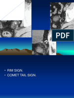 Signs in Radiology