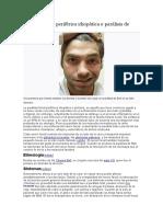 Parálisis Facial Periférica Idiopática o Parálisis de Bell