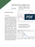 PROCESAMIENTO DE UNA SEÑAL ECG (tarea 2).pdf