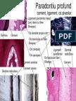 Paradontiu Profund Cement, Ligament, Os Alveolar