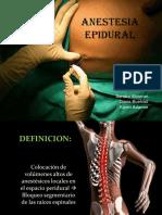 Anestesis Epidural