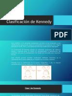 Clasificación de Kenedy