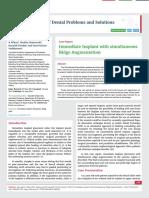 Immediate Implant with simultaneous Ridge Augmentation