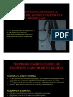 Aspectos Radiológicos Para Trombòlisis Del Infarto Cerebral.2015