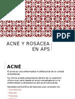 Acné y Rosácea en APS 1.2