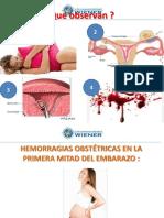 5.- Hemoorragia Primera Mitad Embarazo 154 0