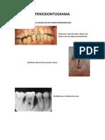 Periodontograma Clase 1