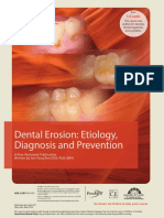 dental erosion.pdf