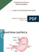 Ulcera Gastrica Manejo Quirurgico