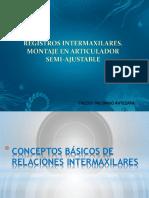 Relaciones Intermaxilares en Protesis Parcial Remobible