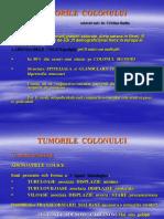 04 Tumorile Colonului-dr.badiu
