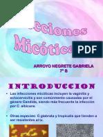 candidiasis-1203304789980127-3