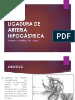 Ligadura de Arteria Hipogástrica