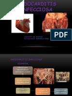 Endocarditis Infecciosa Mariela Final