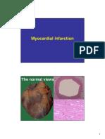 infarction.pdf