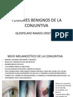 Tumores Benignos y Malignos Conjuntiva
